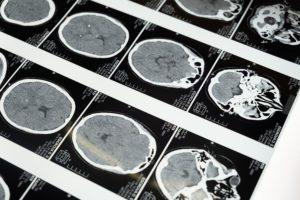 Covid e cervello